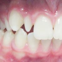 Dentes Conóides